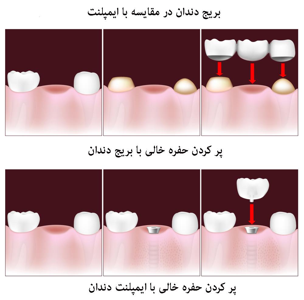 بریج دندان در مقایسه با ایمپلنت