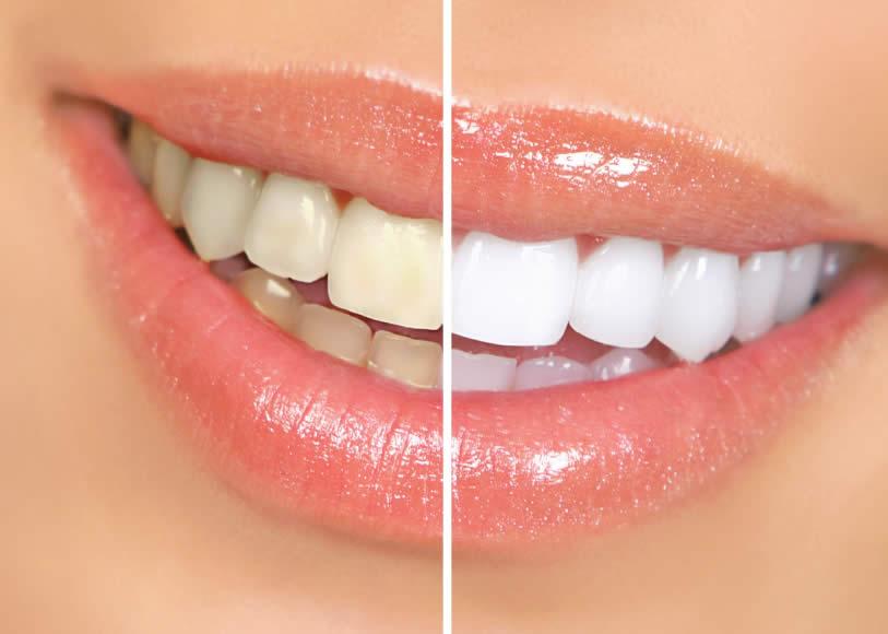 بلیچینگ یک روش ارزان برای اصلاح طرح لبخند