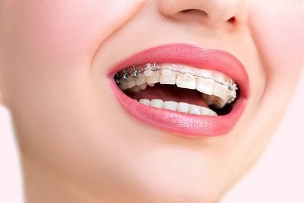 ارتودنسی بهترین روش اصلاح طرح لبخند
