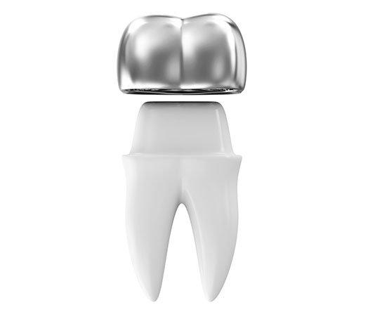 روکش دندان تمام فلزی