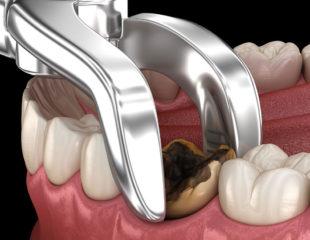 کشیدن دندان پوسیده