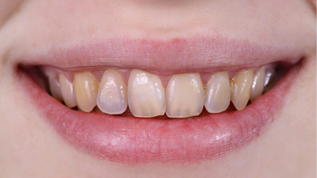 شیشه ای شدن دندان به علت فرسایش مینای دندان