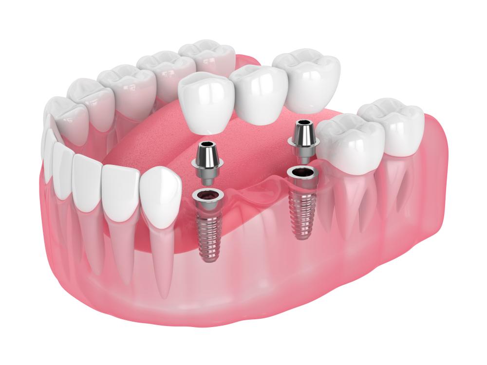پل و ایمپلنت - دندان مصنوعی ثابت