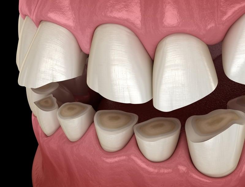 فرسایش مینای دندان