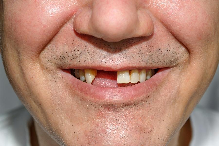 روش های جایگزین دندان از دست رفته